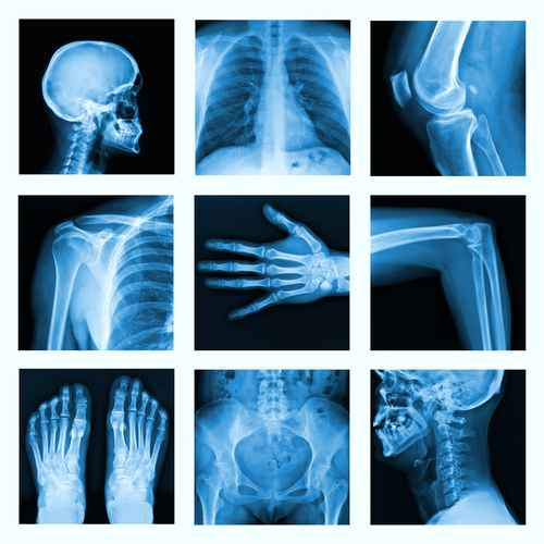 Collage of many X-rays in very good quality.